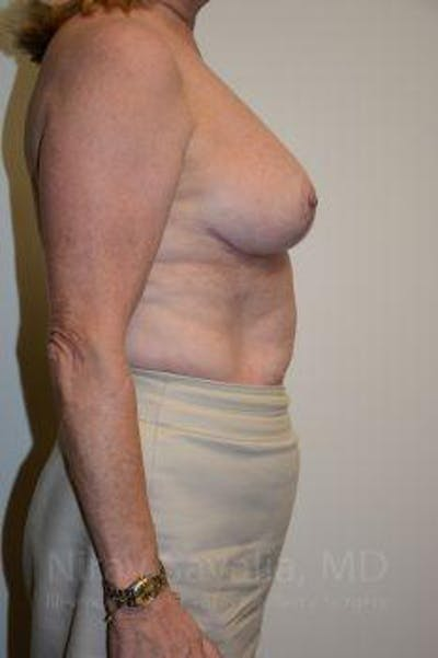 Breast Lift without Implants Gallery - Patient 1655501 - Image 6