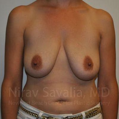 Breast Lift with Implants Gallery - Patient 1655502 - Image 1