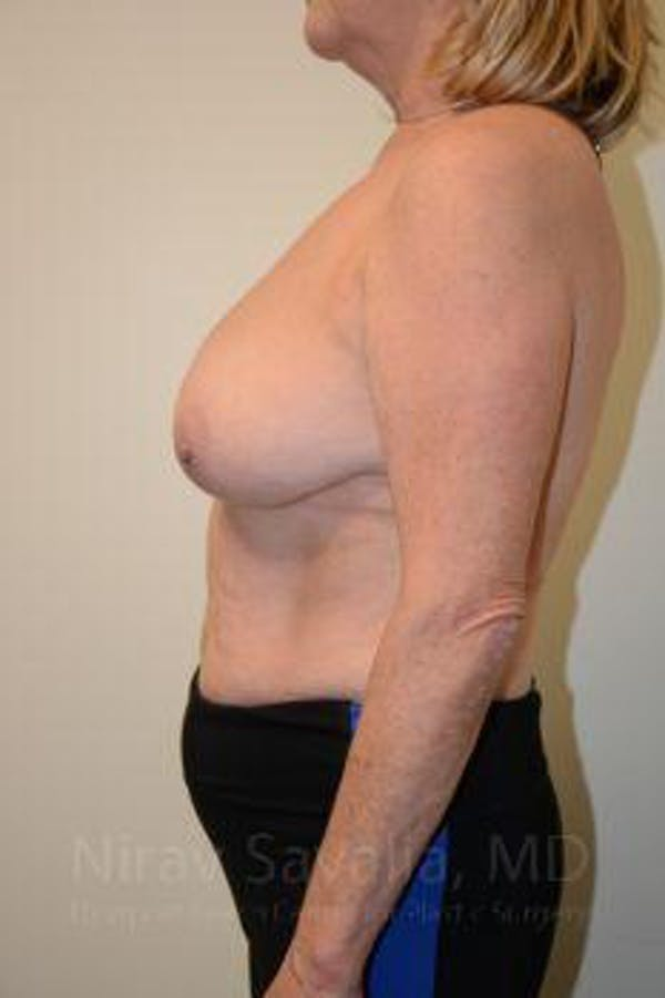 Breast Lift without Implants Gallery - Patient 1655501 - Image 7