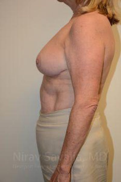Breast Lift without Implants Gallery - Patient 1655501 - Image 8