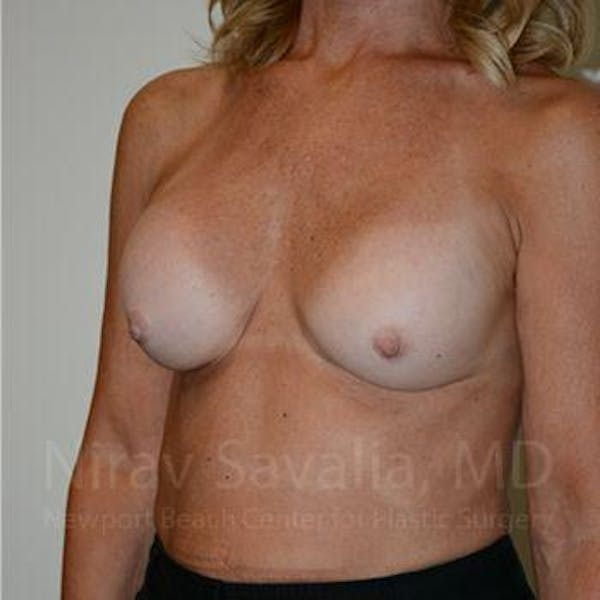 Breast Implant Revision Gallery - Patient 1655503 - Image 7