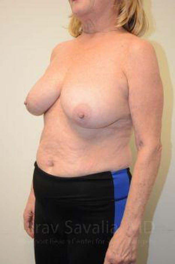 Breast Lift without Implants Gallery - Patient 1655501 - Image 9
