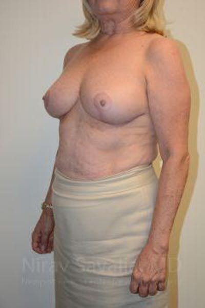 Breast Lift without Implants Gallery - Patient 1655501 - Image 10