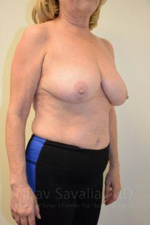 Breast Lift without Implants Gallery - Patient 1655501 - Image 11