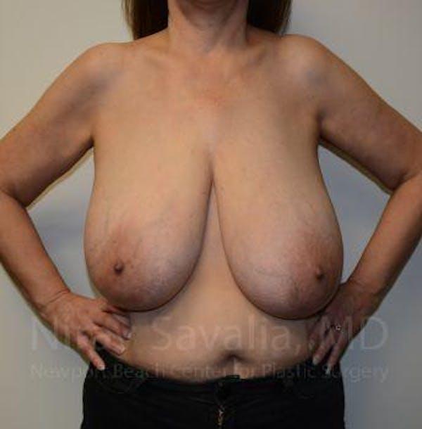 Oncoplastic Reconstruction Gallery - Patient 1655505 - Image 1