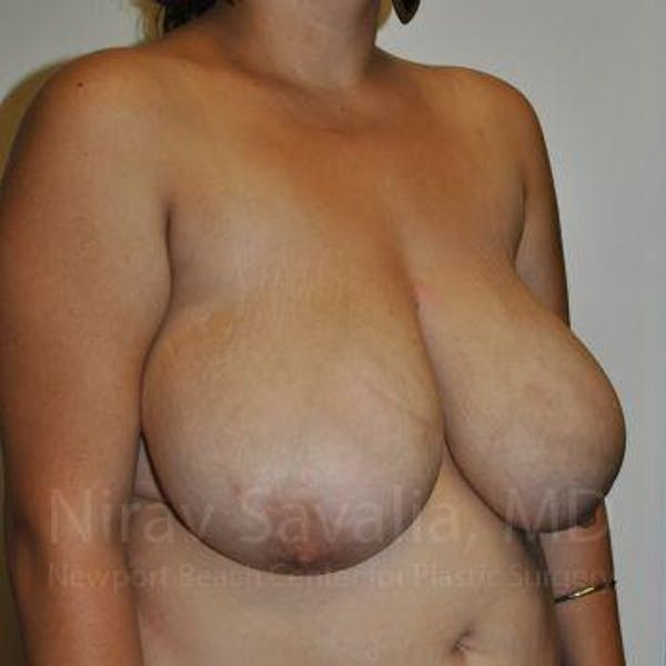 Breast Reduction Gallery - Patient 1655504 - Image 7