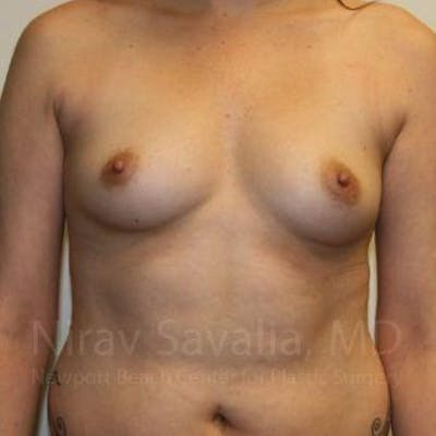 Breast Augmentation Gallery - Patient 1655506 - Image 1