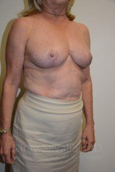 Breast Lift without Implants Gallery - Patient 1655501 - Image 12