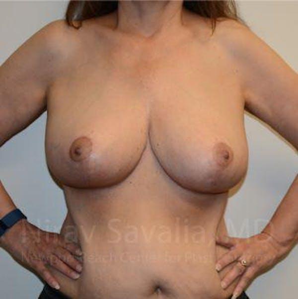 Oncoplastic Reconstruction Gallery - Patient 1655505 - Image 2