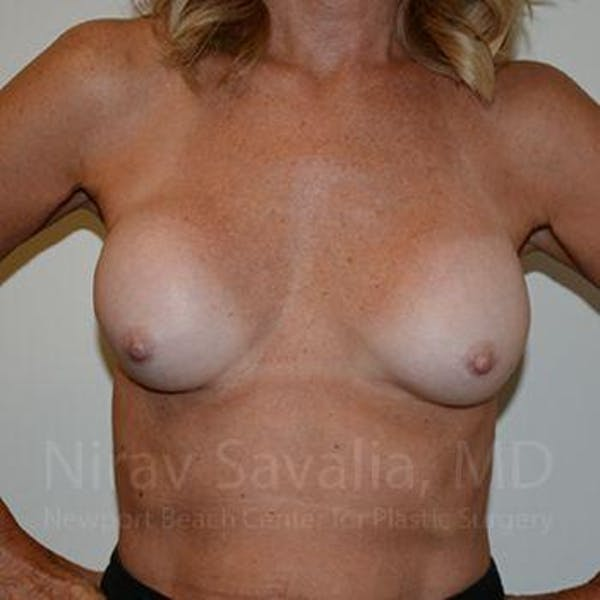 Breast Implant Revision Gallery - Patient 1655503 - Image 11
