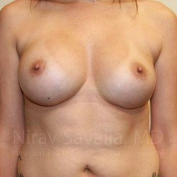 Breast Augmentation Gallery - Patient 1655506 - Image 2