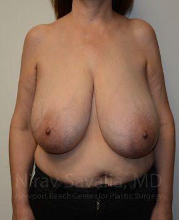 Oncoplastic Reconstruction Gallery - Patient 1655505 - Image 3