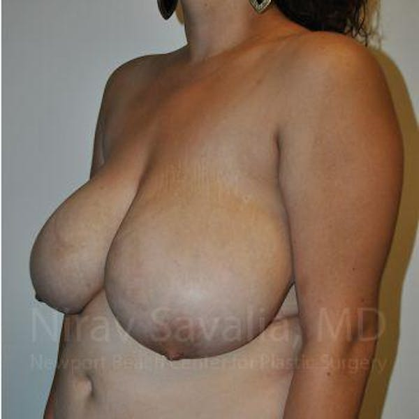Breast Reduction Gallery - Patient 1655504 - Image 9
