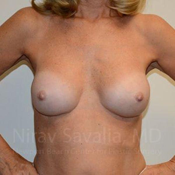 Breast Implant Revision Gallery - Patient 1655503 - Image 12