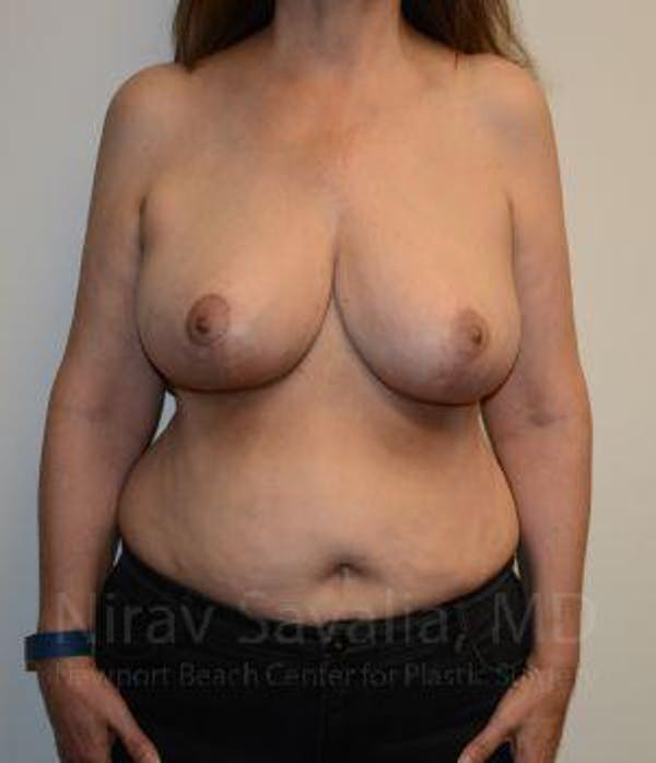 Oncoplastic Reconstruction Gallery - Patient 1655505 - Image 4