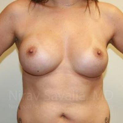 Breast Augmentation Gallery - Patient 1655506 - Image 4