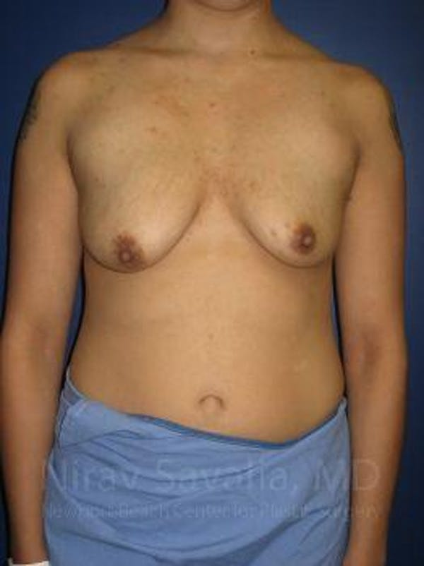 Breast Lift with Implants Gallery - Patient 1655508 - Image 1
