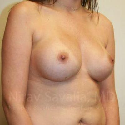 Breast Augmentation Gallery - Patient 1655506 - Image 8