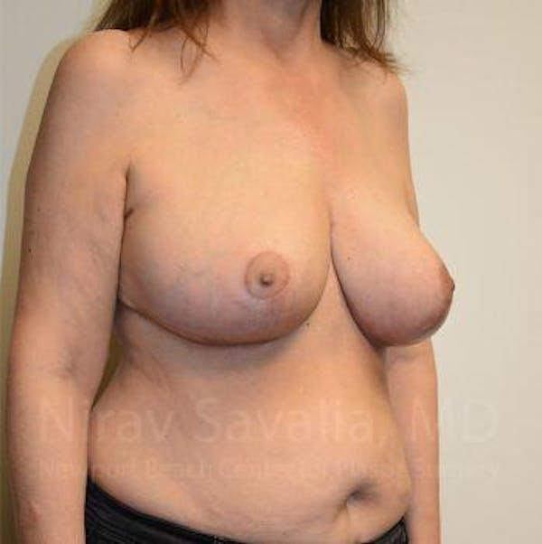 Oncoplastic Reconstruction Gallery - Patient 1655505 - Image 10