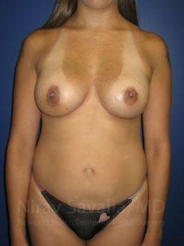 Breast Lift with Implants Gallery - Patient 1655508 - Image 2