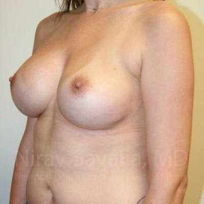 Breast Augmentation Gallery - Patient 1655506 - Image 10
