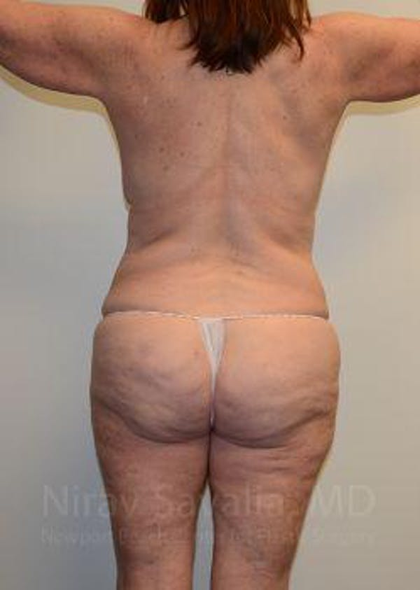 Breast Lift without Implants Gallery - Patient 1655509 - Image 3