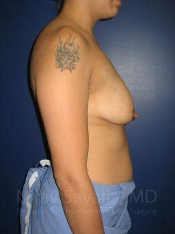 Breast Lift with Implants Gallery - Patient 1655508 - Image 3