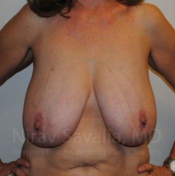 Breast Reduction Gallery - Patient 1655510 - Image 1