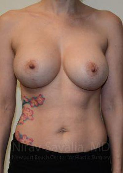 Breast Implant Revision Gallery - Patient 1655507 - Image 2