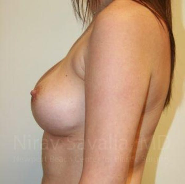 Breast Augmentation Gallery - Patient 1655506 - Image 12