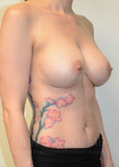 Breast Implant Revision Gallery - Patient 1655507 - Image 4