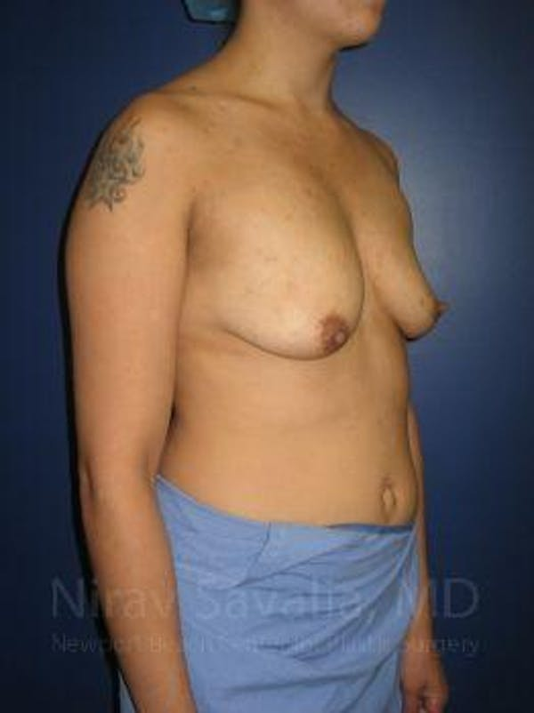 Breast Lift with Implants Gallery - Patient 1655508 - Image 7