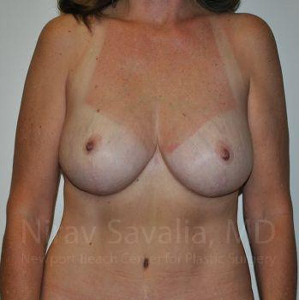 Breast Reduction Gallery - Patient 1655510 - Image 4