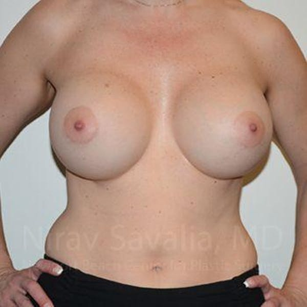 Breast Augmentation Gallery - Patient 1655512 - Image 4