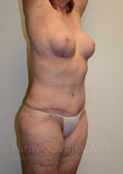 Breast Lift without Implants Gallery - Patient 1655509 - Image 12