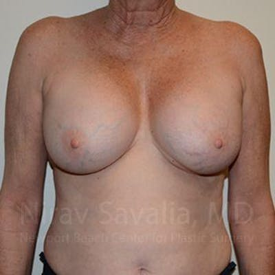 Breast Implant Revision Gallery - Patient 1655513 - Image 1