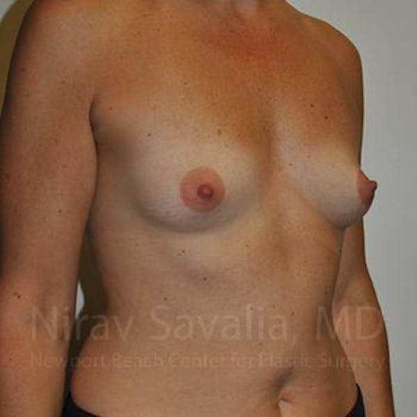Breast Augmentation Gallery - Patient 1655512 - Image 7
