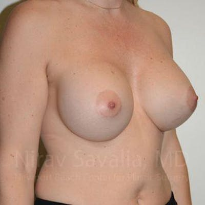 Breast Augmentation Gallery - Patient 1655512 - Image 8