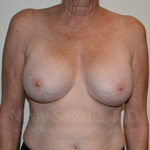 Breast Implant Revision Gallery - Patient 1655513 - Image 2