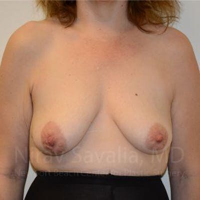 Breast Lift with Implants Gallery - Patient 1655514 - Image 1