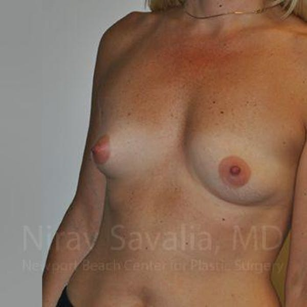 Breast Augmentation Gallery - Patient 1655512 - Image 9