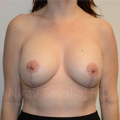 Breast Lift with Implants Gallery - Patient 1655514 - Image 2