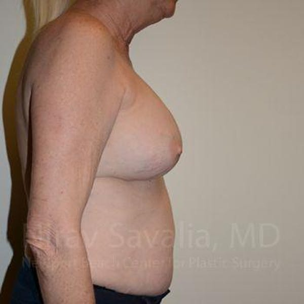 Breast Implant Revision Gallery - Patient 1655513 - Image 3