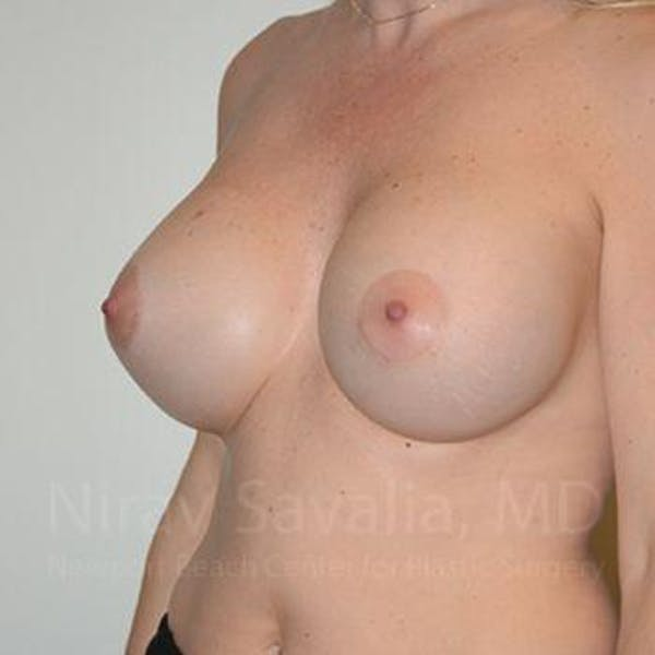 Breast Augmentation Gallery - Patient 1655512 - Image 10
