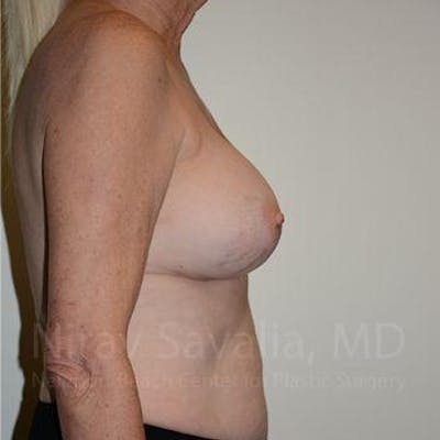 Breast Implant Revision Gallery - Patient 1655513 - Image 4