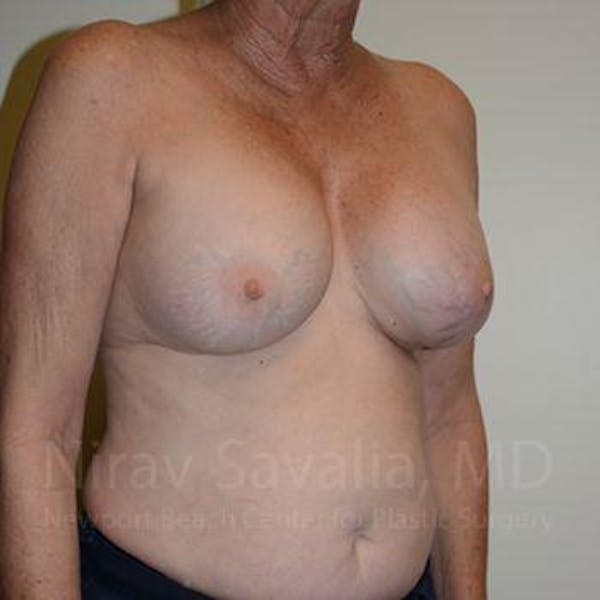Breast Implant Revision Gallery - Patient 1655513 - Image 5