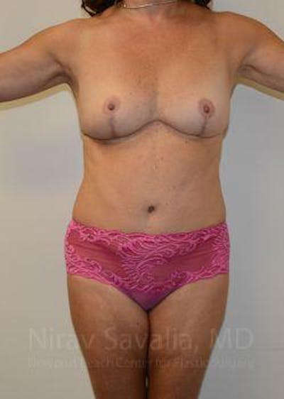 Breast Lift without Implants Gallery - Patient 1655515 - Image 2
