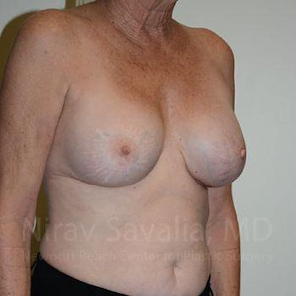 Breast Implant Revision Gallery - Patient 1655513 - Image 6