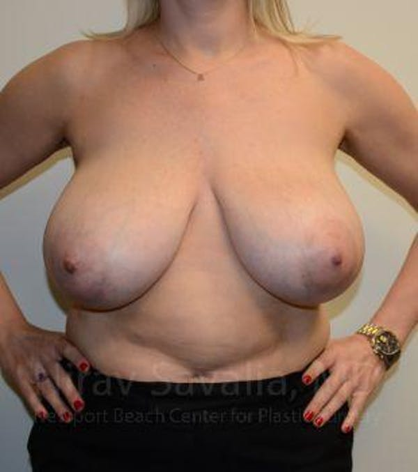 Breast Reduction Gallery - Patient 1655516 - Image 1