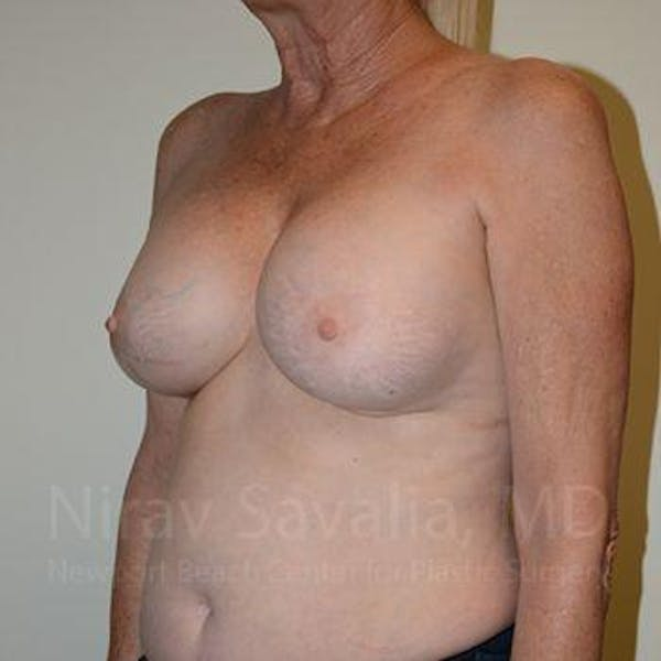 Breast Implant Revision Gallery - Patient 1655513 - Image 7